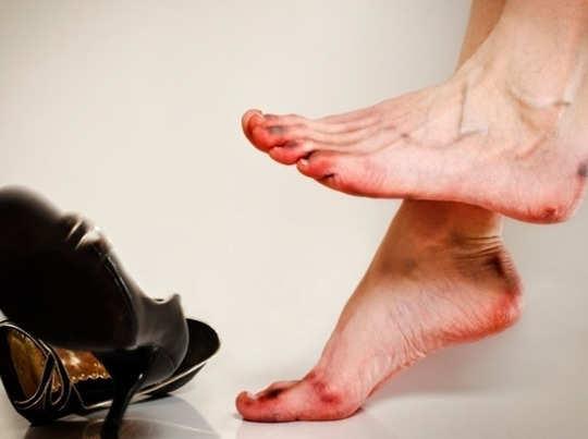 क्या सर्दियों में आपके पैर भी फट जाते हैं?