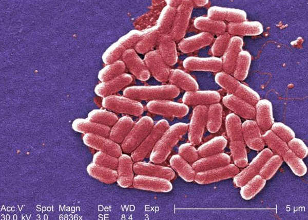 ऐंटीबायॉटिक के इस्तेमाल की हमारी लापरवाही से यह लाइलाज महामारी