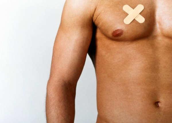 पुरुषों में ब्रेस्ट कैंसर एक दुर्लभ रोग है
