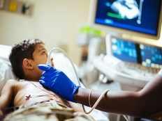 rotary club to fund heart surgeries of 300 tn children