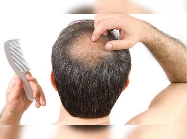 Hair-loss-A-hair-surgeon