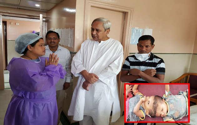 सिर से जुड़े बच्चे, जग्गा और कालिया से मिले ओडिशा के सीएम