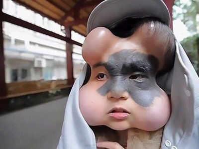 अजब! कैंसर से बचाने के लिए इस लड़की के चेहरे में डॉक्टर्स ने लगाए 4 गुब्बारे