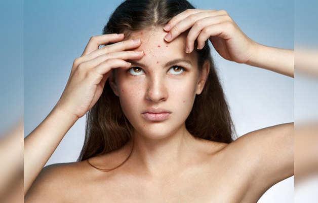how to get rid of old acne scars: कील-मुंहासे के दाग-धब्बे यूं हो जाएंगे दूर