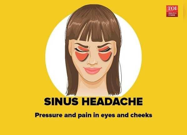 साइनस सिरदर्द