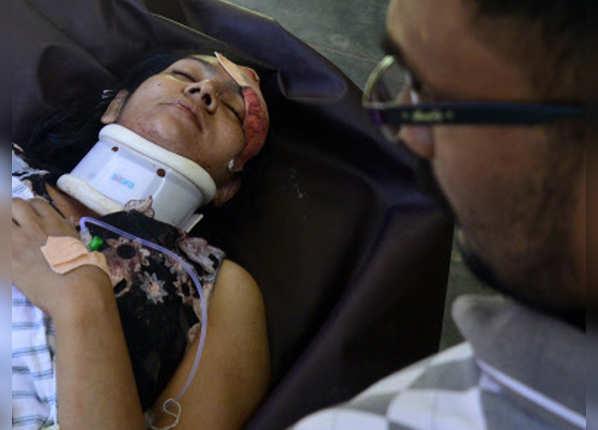 बम धमाके में घायल हुई एक महिला