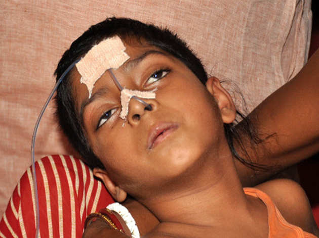 चमकी बुखार से अब तक 93 मौतें