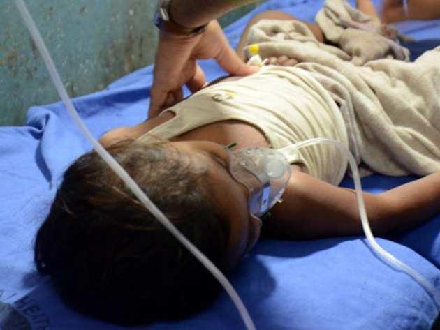 अस्पताल में भर्ती इन्सेफलाइटिस पीड़ित बच्चा