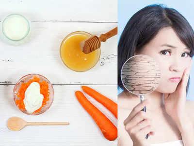 थाइरॉइड बढ़ा है तो खाएं चुकंदर और गाजर