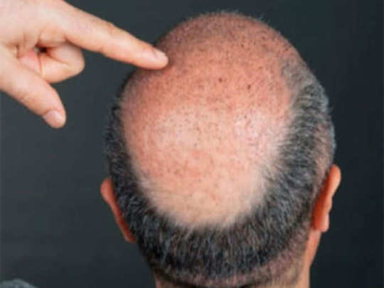 hair-loss-and-baldness