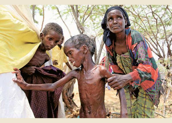 सोमालिया के अकाल पीड़ित बच्चे