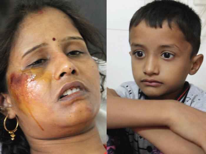 घायल सुनीता और युवराज