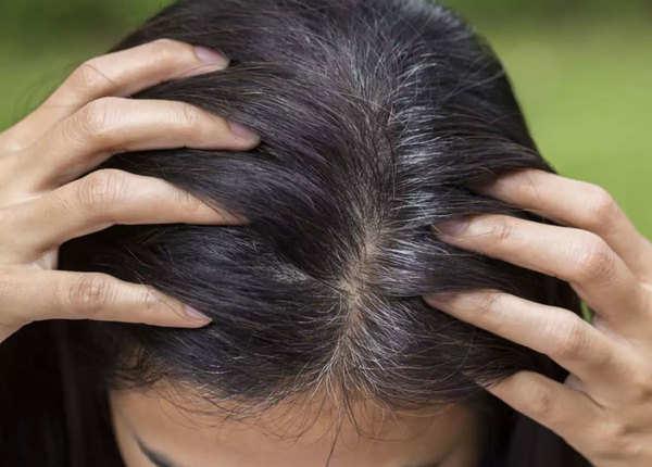 बालों को सफेद होने से रोकें
