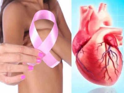 ब्रेस्ट कैंसर और हार्ट ट्यूमर की सर्जरी एक साथ