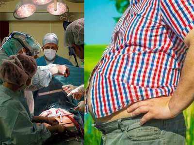वेट लॉस के लिए करवायी जा रही बैरियाट्रिक सर्जरी