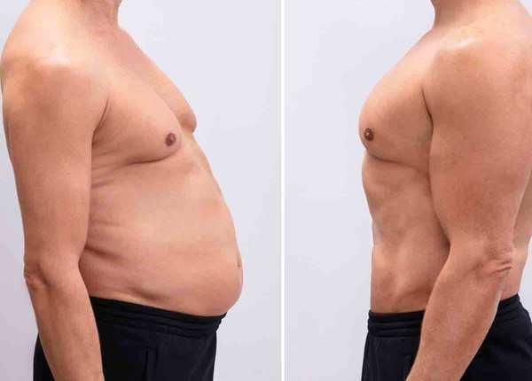 आयुर्वेद की मदद से घटाएं पेट की चर्बी