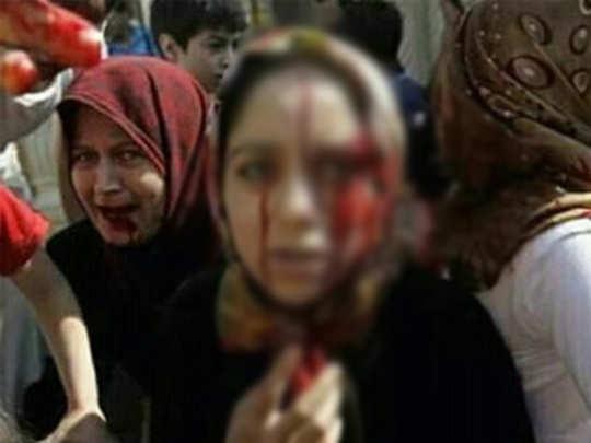 Fact Check: हा रक्तरंजित फोटो काश्मीरचा नाही