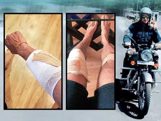 सिद्धार्थ के हाथ-पैर में लगी चोट
