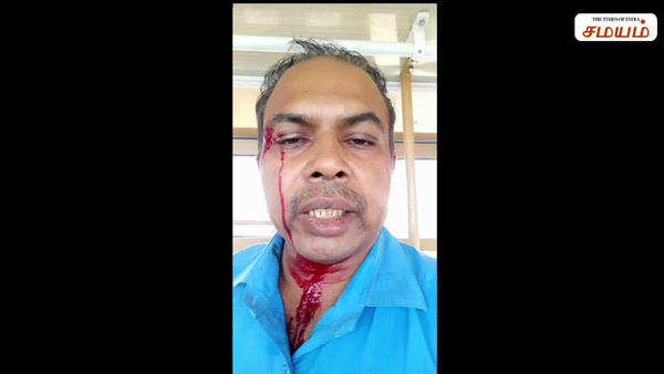 government bus conductor got punch from police