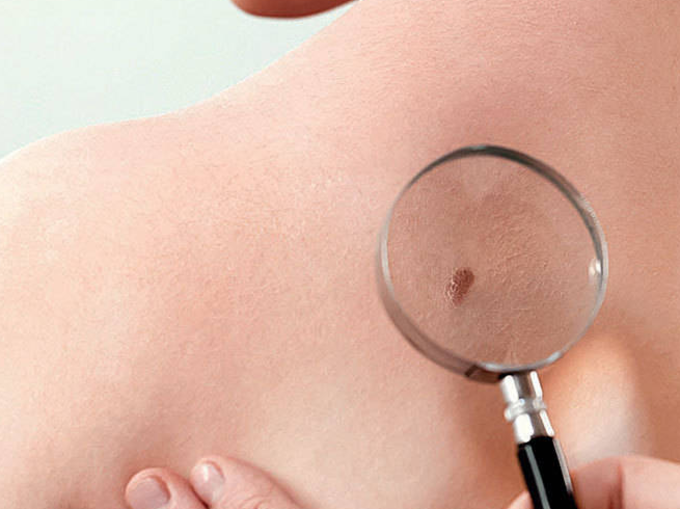 """Skin Cancer À¤¯à¤¹ À¤œ À¤¨ Skin Cancer À¤• À¤• À¤°à¤£ À¤""""र À¤‡à¤¸à¤¸ À¤œ À¤¡ À¤¤ À¤œ À¤° À¤¸à¤° À¤š Skin Cancer And Its Causes And Treatment Navbharat Times"""