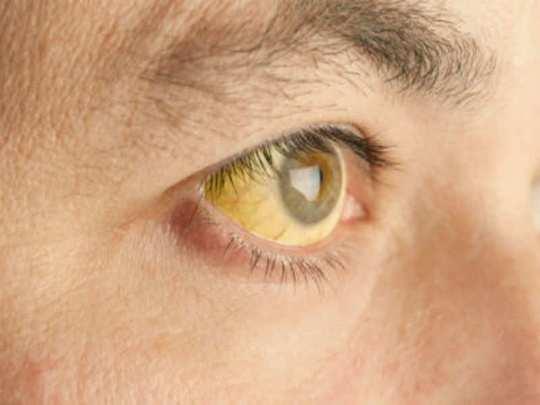yello eye