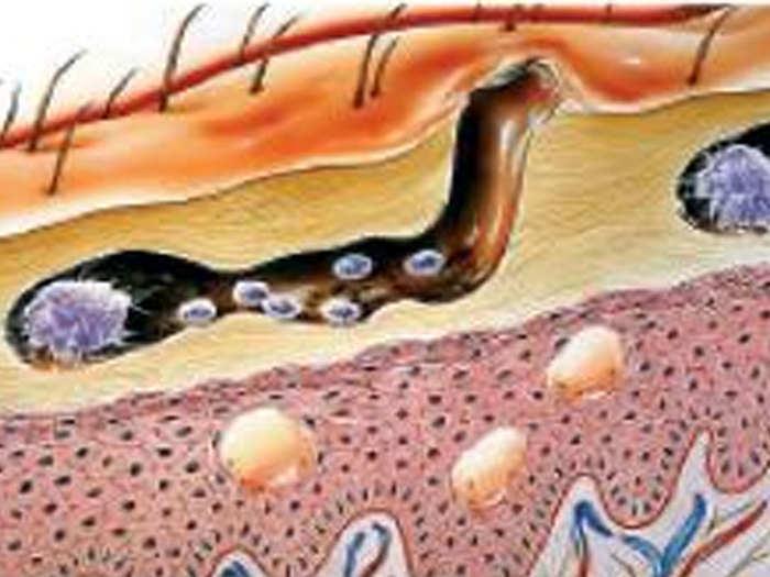 scabies_disease