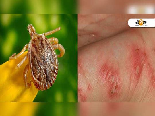 scrub typhus
