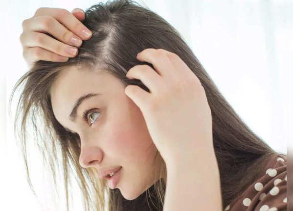 बालों का झड़ना