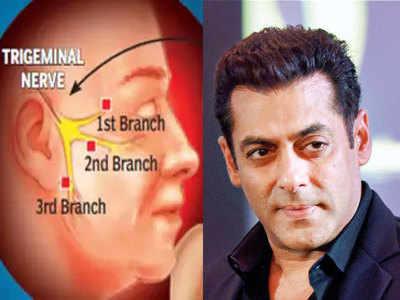ट्राइजेमिनल न्यूराल्जिया से पीड़ित थे सलमान खान