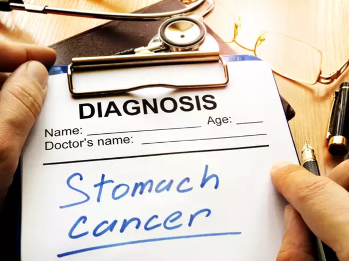 stomach-cancer-2