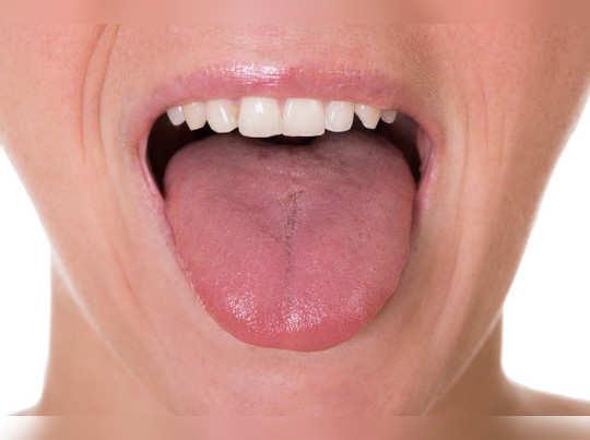sleep apnea tongue1