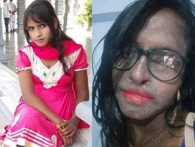 रुपाली की तेजाबकांड से पहले और बाद की तस्वीर