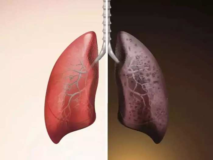 Hello! How are your lungs? Read this and check it out for free!