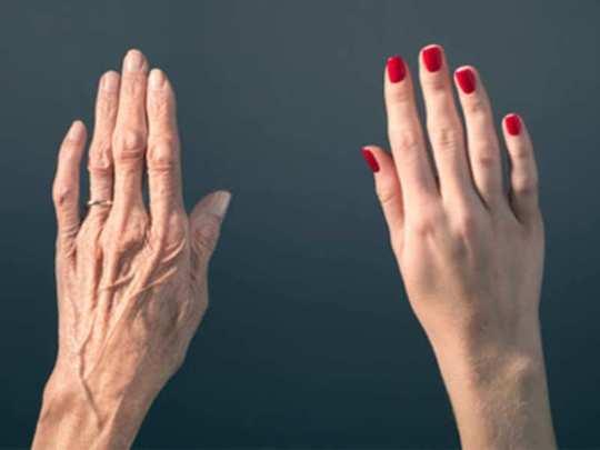 bulging veins in hands
