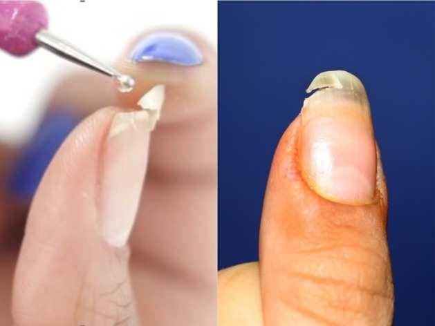 DIY Tricks: इन 5 Steps की हेल्प से जोड़ें अपना टूटा हुआ नाखून, ट्रिक है बेहद आसान