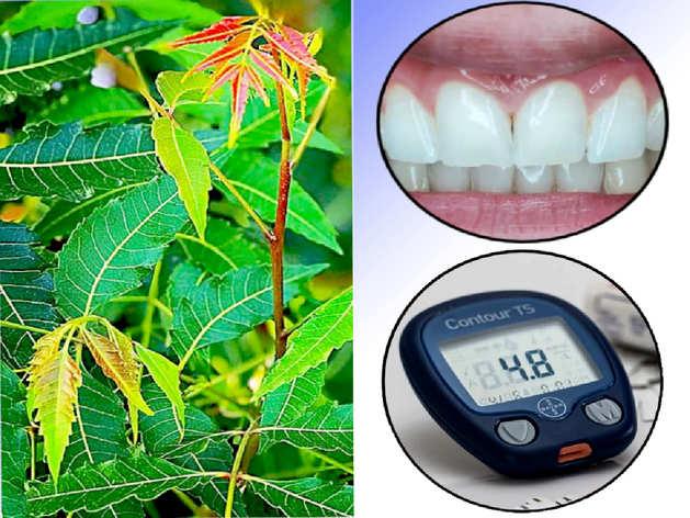 Neem Leaves: मुंहासे-पायरिया और डायबिटीज का इलाज हैं नीम की पत्तियां, खाली पेट खाने से होगा फायदा