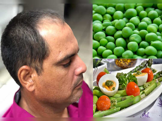 eat these healthy foods to prevent hair loss dandruff in hindi
