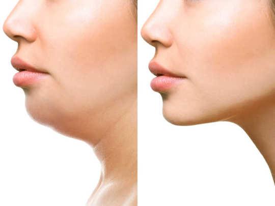 double chin timesofindia