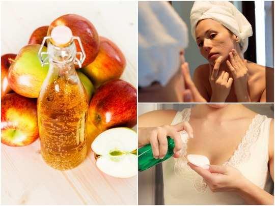 apple cider vinegar toner benefits recipe tips for use skin care tips