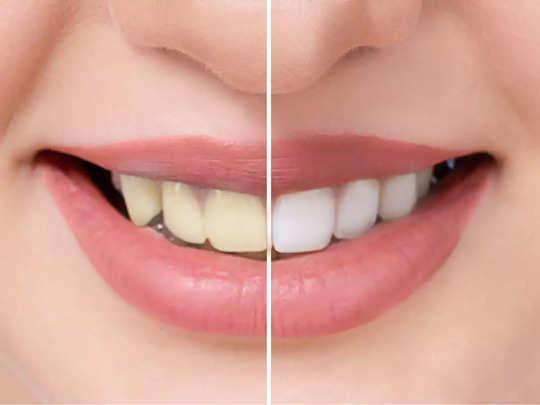 mustard oil for teeth whitening in hindi.