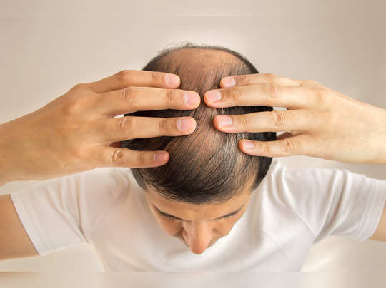 how to treat baldness