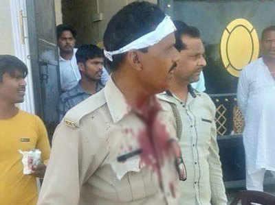 हमले में घायल हुए 2 पुलिसकर्मी