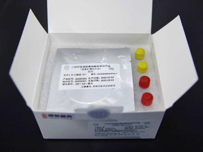 कोरोना की जांच के लिए रैपिड टेस्टिंग किट (फाइल फोटो)
