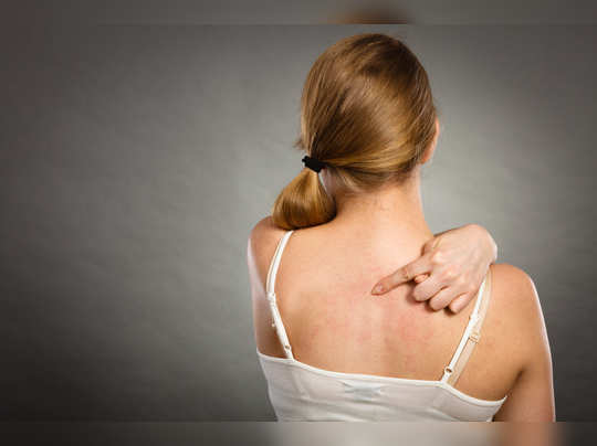 home remedies for back acne in hindi