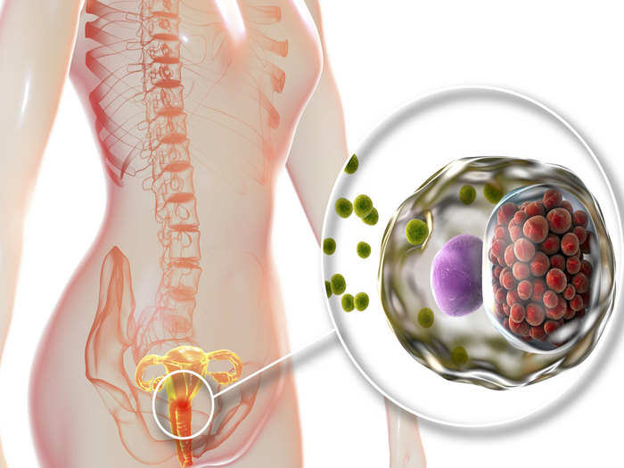 difference between uti, yeast and bladder infection in hindi