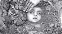 Vizag Gas Leak: 36 साल पुरानी भोपाल गैस त्रासदी की यादें ताजा, तस्वीरें देख कांप जाती हैं रुह