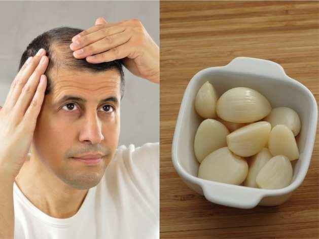 Hair Care Remedies: गंजे सिर पर भी उग आएंगे नए बाल, ऐसे करें लहसुन का इस्तेमाल