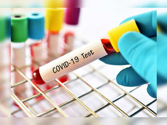 Covid-Test