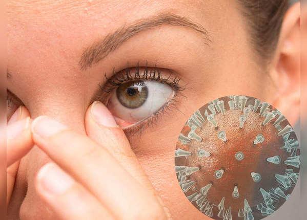 आंखों के संक्रमण को कैसे रोकें?
