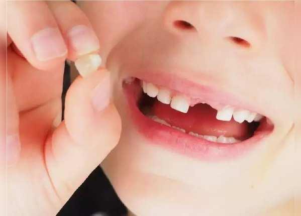 दांतों में कीड़ा लगने से क्या उपाय करें